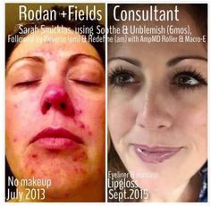"""Helping people is what we do! ❤️ Remember Sarah Marie??? Well she just shared an update on her transformation over the past 2 years:  """"Many of you know I struggled with ocular rosacea, ulcers on my corneas, and was told by my eye specialists that I'd have to go on doxycycline indefinitely to control the rosacea. Thankfully my friend Lauren had joined R+F and I saw her Soothe before & after post at just the right time! I avoided meds & got the best skin of my life, all tha"""