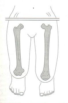 Dismetría de origen femoral.