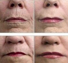 Face... Anti Wrinkle Mask... Mix 2 Tablespoons Honey, Pinch Turmeric Powder, Few Drops Lemon Juice, Massage On Face, Leave 15 Minutes