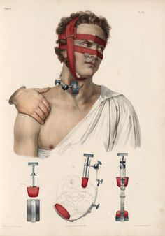 sutured-infection:  Nicolas Henri Jacob - Instruments for compressing arteries