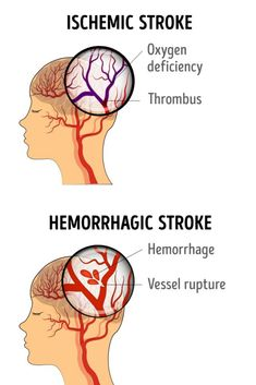 Stroke is an emergency medical condition that occurs when the blood flow to the brain is cut off. Without blood intake, brain cells will die. This can cause a series of fatal complications, from permanent paralysis to death. There are more than one type of stroke. The most common are ischemic stroke and hemorrhagic stroke. #ischemicstroke #hemorrhagicstroke #stroke #health