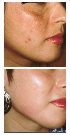 face scar before after