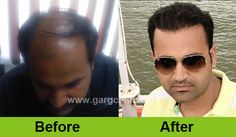 Be surprised of your look after seeing the result of hair transplant. Feel the different off after and before look.  Check out here for more info: http://www.gargclinic.com/our-result-hair-transplant/  #baldness #hairtranslpant #hairtransplantinindia