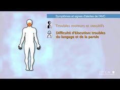 Symptômes et signes d'alerte de l'AVC   2014