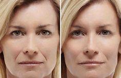 Носогубные складки практически незаметны у молодых девушек. С возрастом же у многих женщин эти две борозды, соединяющие крылья носа и уголки рта, проявляются и становятся четкими. Обычно их появление обусловлено возрастными изменениями.    Убрать носогубные складки можно с помощью разнообразных