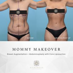 Amazing results by Dr. Maningas, a triple board certified cosmetic surgeon based in Joplin, MO. Mommy Makeover - Breast Augmentation with a Tummy Tuck, Core Liposuction, and Diastasis Recti Repair. Mini Tummy Tuck, Tummy Tucks, Diastasis Recti Repair, Tummy Tuck Before After, Tummy Tuck Surgery, Mommy Makeover, Liposuction, Plastic Surgery, Amazing