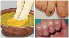 Watch This Video Mind Blowing Home Remedies for Toenail Fungus that Really Work Ideas. Astonishing Home Remedies for Toenail Fungus that Really Work Ideas. Snoring Remedies, Home Remedies, Natural Remedies, Homeopathic Remedies, Toenail Fungus Remedies, Toenail Fungus Treatment, Alcohol Vinegar, Toe Fungus, Listerine