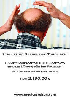 Haartransplantationen in Antalya - 4.000 Grafts für nur 2.190 €