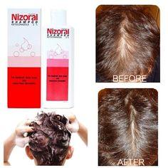 Nizoral ketoconazol 2% shampoo strong anti dandruff hair loss 50,100,200 ml #NIZORAL