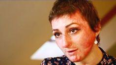 TRAGEDIA din COLECTIV si INFECTIILE CU BACTERIILE din SPITALELE din ROMANIA