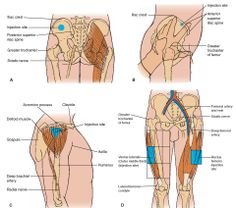 Sites for Injections  Dorsogluteal, Ventrogluteal, Deltoid, & Vastus Lateralis