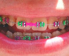 26 Best Fun With Braces Images On Pinterest Orthodontics