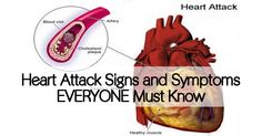 Think you're not at risk for a heart attack? Think again. Find out what can trigger cardiac arrest and the signs of warning.