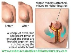 for breast implants Prices