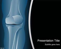 Plantilla PowerPoint de Radiología es un diseño de PowerPoint para médicos y profesionales de la salud que puede descargar como diapos gratis para presentaciones que tengan que ver con fisioterapia pero también para radiología en PowerPoint