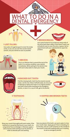 What to do in Dental Emergency Situations?  #dental #dentistry #dentist