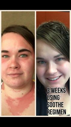 Rodan and Fields Soothe regimen.  Amazing results in just 3 weeks!  Do you have sensitive skin, eczema, psoriasis?  Then this is for you!  60 day, empty bottle, money back guarantee!  https://kdunnam.myrandf.com