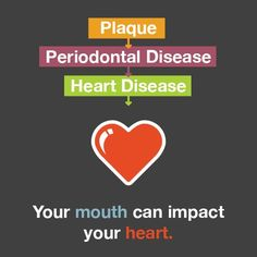 How you take care of your mouth can have an impact on your heart #heartdisease #dental #teeth #dentistry #periodontaldisease