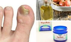 6 einfache Mittel, die gegen Nagelpilz helfen könnten Natural home remedies can be very useful to treat nail fungus and prevent it from spreading. Vicks Vaporub Uses, Nail Fungus, Natural Home Remedies, Toe Nails, Fungi, Body Care, Health And Beauty, Health Tips, Health Care