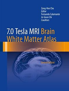 [Free Read] 7.0 Tesla MRI Brain White Matter Atlas Author Zang-Hee Cho, #Bookshelves #EBooks #BookWorld #Fiction #KindleBargains #Suspense #ChickLit #GreatReads #AmReading Got Books, Books To Read, William Bligh, Mri Brain, Gary Indiana, White Matter, Atlas, What To Read, Book Photography