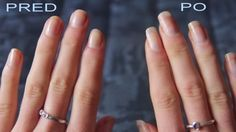 8 Best Tips For Long And Strong Nails Growth Permanent Secret (Nail Growth Tips - all the women want to look beautiful in their hands Make Nails Grow, Grow Nails Faster, Diy Nails Soak, Nail Soak, Nail Growth Tips, Hair And Nails, My Nails, Cure Nails, Nagel Hacks