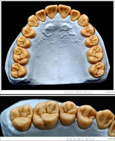 Dental Health Important Dental Life, Dental Art, Dental Health, Dental Lab Technician, Dental Pictures, Dental Aesthetics, Dental Anatomy, Dental Laboratory