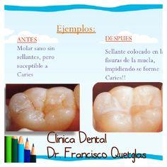 Prevenga las Caries en Niños y Adolescentes con Sellantes de Fisuras. Escribanos a: dental.elsalvador@hotmail.com