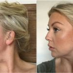 How To Make Pores Disappear Naturally Using Only 1 Ingredient - HowManyCalories Paleo Diet Plan, Diet Plan Menu, Home Remedies For Spiders, Detox Water For Clear Skin, Fat Burning Smoothie Recipes, Fat Burning Water, Lemon Detox, Lord, Water Recipes