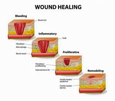 Wound healing Med Surg Nursing, Pharmacology Nursing, Nursing Cheat Sheet, Tissue Types, Wound Healing, Medical Laboratory Science, Fundamentals Of Nursing, Wound Dressing, School