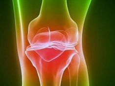 Remedies For Knee Joint Pain Black bean broth: Treatment for arthritis, gout and joint pain- gonna try this, considering I've had 2 knee surgeries and at 28 just got diagnosed with osteoarthritis - Chronic Fatigue, Chronic Pain, Fibromyalgia, Natural Remedies For Arthritis, Herbal Remedies, Neuropathic Pain, Cancer, Arthritis, 40 Rocks