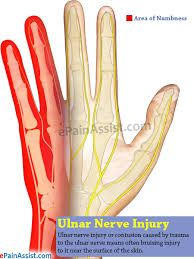 Detailed explanation of Ulnar Nerve Injury: Neuropathy. Guide to know its causes, symptoms and treatment for Ulnar Nerve Neuropathy. Nerve Damage In Arm, Nerve Pain, Sore Shoulder, Shoulder Pain Relief, Ulnar Nerve Exercises, Tingling In Fingers, Ulnar Nerve Entrapment, Pinched Nerve Relief, Trapped Nerve