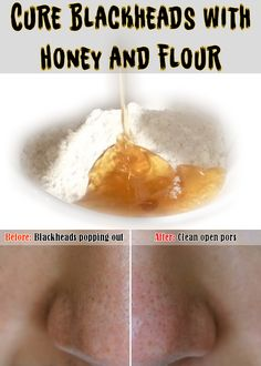 Cure Blackheads with Honey and Flour