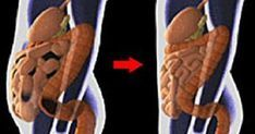 Вот как согнать с живота 5-7 кило токсинов!