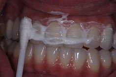 Todos sabemos que la limpieza dental es parte fundamental de nuestro día a día. Nuestros dientes son sumamente importantes, por esta razón debemos darles el cuidado adecuado y de esta manera poder gozar de unos