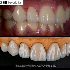 #Repost @kevork_ka with @repostapp  #veneers #luminate #lumineers #dubai #aboudhabi #saudiarabia #quwait #qatar #bahrain #armenia #lebanon #alldental #dentalphotography #dentistery #aesthetic #cosmetics #aesthetcdentistry #cosmeticsurgery #cosmeticthailand #لومنييرز #فنييرز ##عدسات by dr3aleem Our Dental Veneers Page: http://www.lagunavistadental.com/services/cosmetic-dentistry/veneers/ Other Cosmetic Dentistry services we offer: http://www.lagunavistadental.com/services/cosmetic-dentistry…