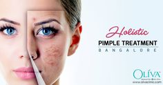 Holistic Pimple Treatment. Book an Appointment in Bangalore https://goo.gl/skvF8i