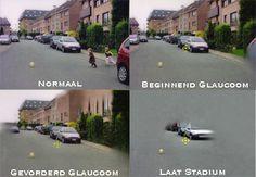 Glaucoom - http://www.stevenziet.nl/245/