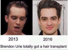 omg<<<I would ask my mom if that's true since she does hair transplants but it's kinda noticeable