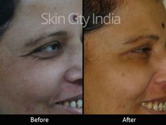 Skin City India - Botox Treatment