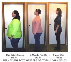biggest loser winners before and after - Google Search ...