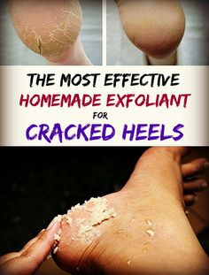 How to prepare the most effective exfoliant for Cracked Heels - Homemade Tutorials
