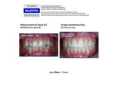 Casi clinici ortodontici Malocclusione di classe 2/2 con morso profondo e grave affollamento dentale http://www.studiodentisticobalestro.com/2014/11/malocclusione-di-classe-22.html