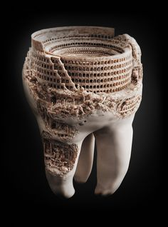 Gingivitis can progress into Periodontal Romanization. Collagenases will attain sentience and after a golden era of science and philosophy, reach a decadent phase in which they'll force osteocytes and enamel hydroxyapatite to battle for their amusement in arenas carved from their former homes.