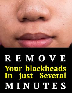 She removed blackheads in just several minutes. What miraculous product did she apply on her face?