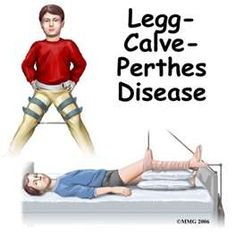 Image Search Results for Legg-Calvé-Perthes disease