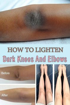 How to lighten dark knees and elbows