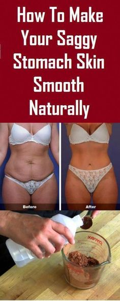 Proven methods to Make Your Saggy Stomach Skin Smooth Naturally Tighten Stomach, Tighten Loose Skin, Lower Stomach, Skin Firming Lotion, Skin Tightening Cream, Face Tightening, Skin Bumps, Extra Skin, How To Slim Down