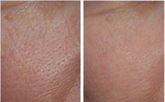 Rozszerzone porysą zjawiskiem dość powszechnym. Zmuszają nas używania większej ilości makijażu. Poznaj przyczyny zaskórników.