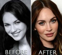 Take a look at Megan Fox before and after photos and make your own opinion. Which and how many plastic surgeries have been perfomed? Megan Fox Plastic Surgery, Plastic Surgery Before After, Celebrity Plastic Surgery, Before After Photo, Woman Crush, Celebrities, Funny, Tips, Photos