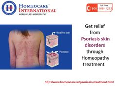 Psoriasis affects badly on the epidermal layer of the skin as red silver scaly patches. It occurs due to improper functioning immune system. In psoriasis the T white blood cell in the immunological tolerance process mistakenly triggers the skin cells. Homeopathy treatment for psoriasis is genetic, natural which cures the diseases permanently from the root cause of occur and get the best treatment at Homeocare International.